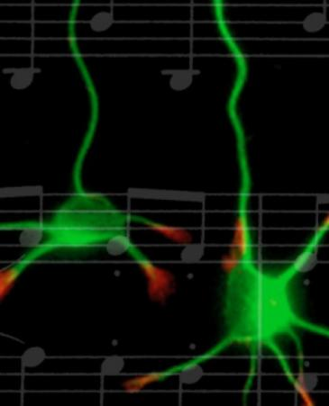 Music cognition